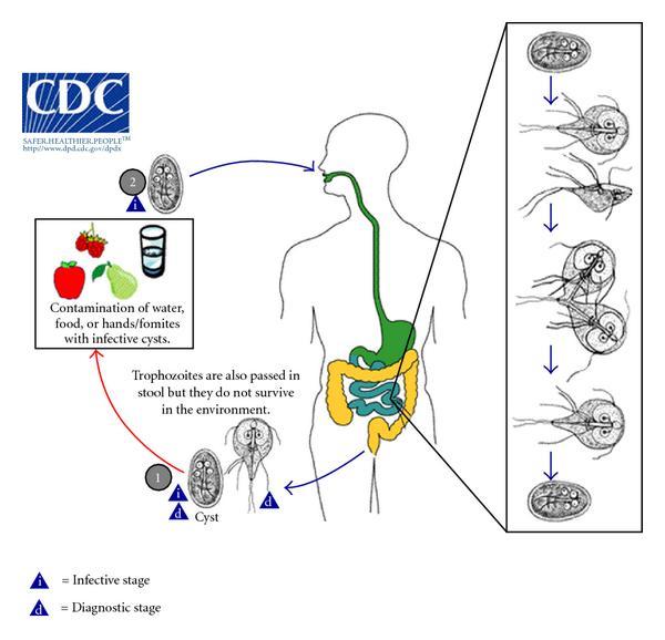 Giardiasis protozoa infection, Giardiasis tünetei és kezelése