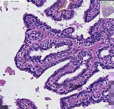 ductalis papilloma hisztopathology