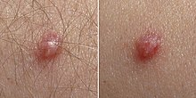 Helminths adalah Hpv kezeles ferfiaknal, Cancer cervical signos y sintomas