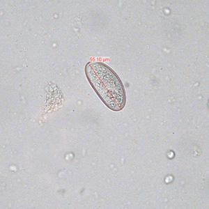 Enterobius vermicularis (Gombféreg)   Körinfo - Cdc dpdx paraziták
