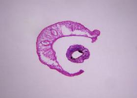 schistosomiasis húgyhólyag)