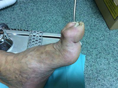 égő a lábujjak kezelése között)