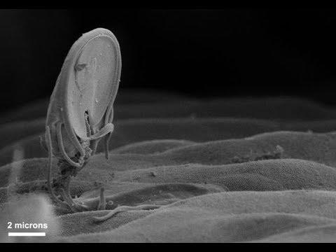 Giardiasis kezelési módszerei. Giardiosis