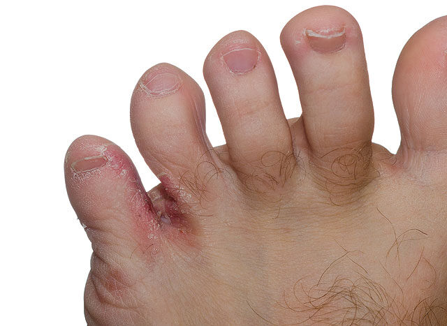 a lábujjak közötti kezelés)