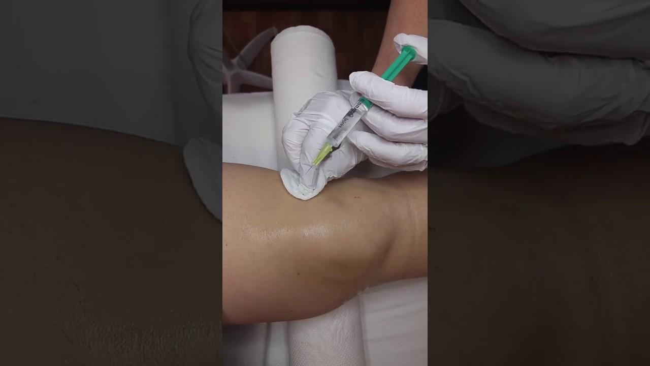 helmint injekció)