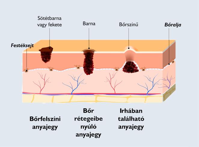 orr papilloma jóindulatú moxibustion nitrogén papillómák