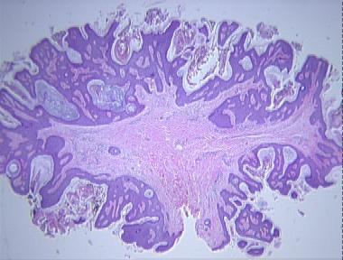 fibroepithelialis papilloma polip)