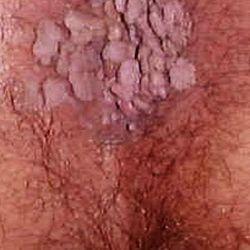 papilloma vírus il)