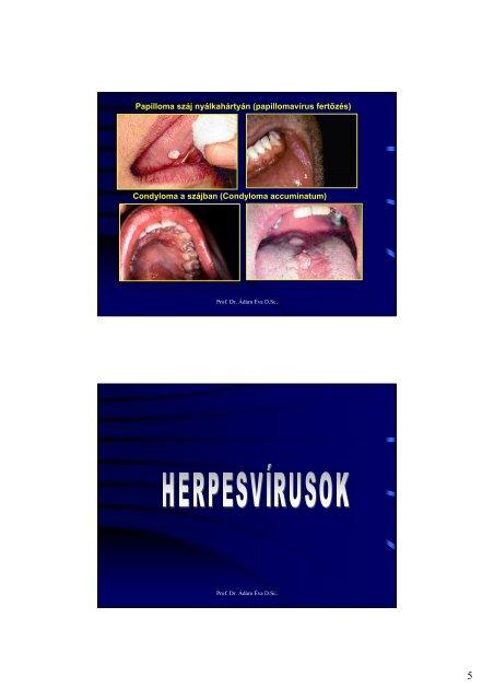 Papilloma vírus a szájban tünetek
