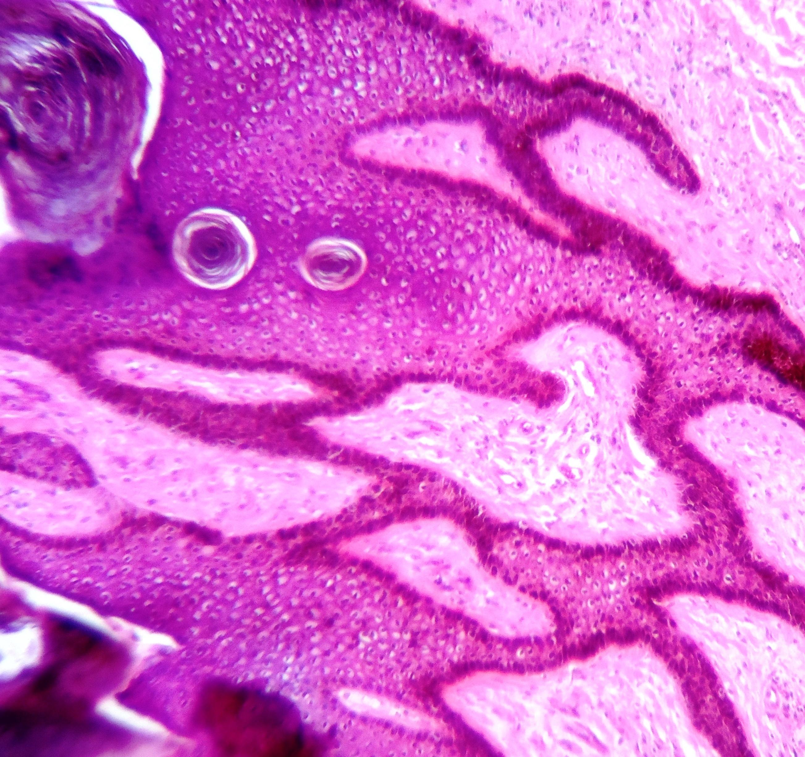 fertőzött papilloma