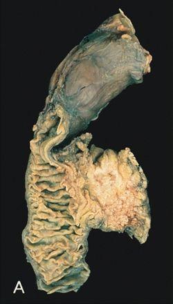 a legrosszabb prognózisú endometrium rák)