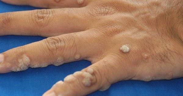 paraziták lepomis gibbosus szemölcsök az aktus során