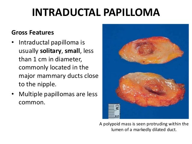 intraductalis papilloma in situ)