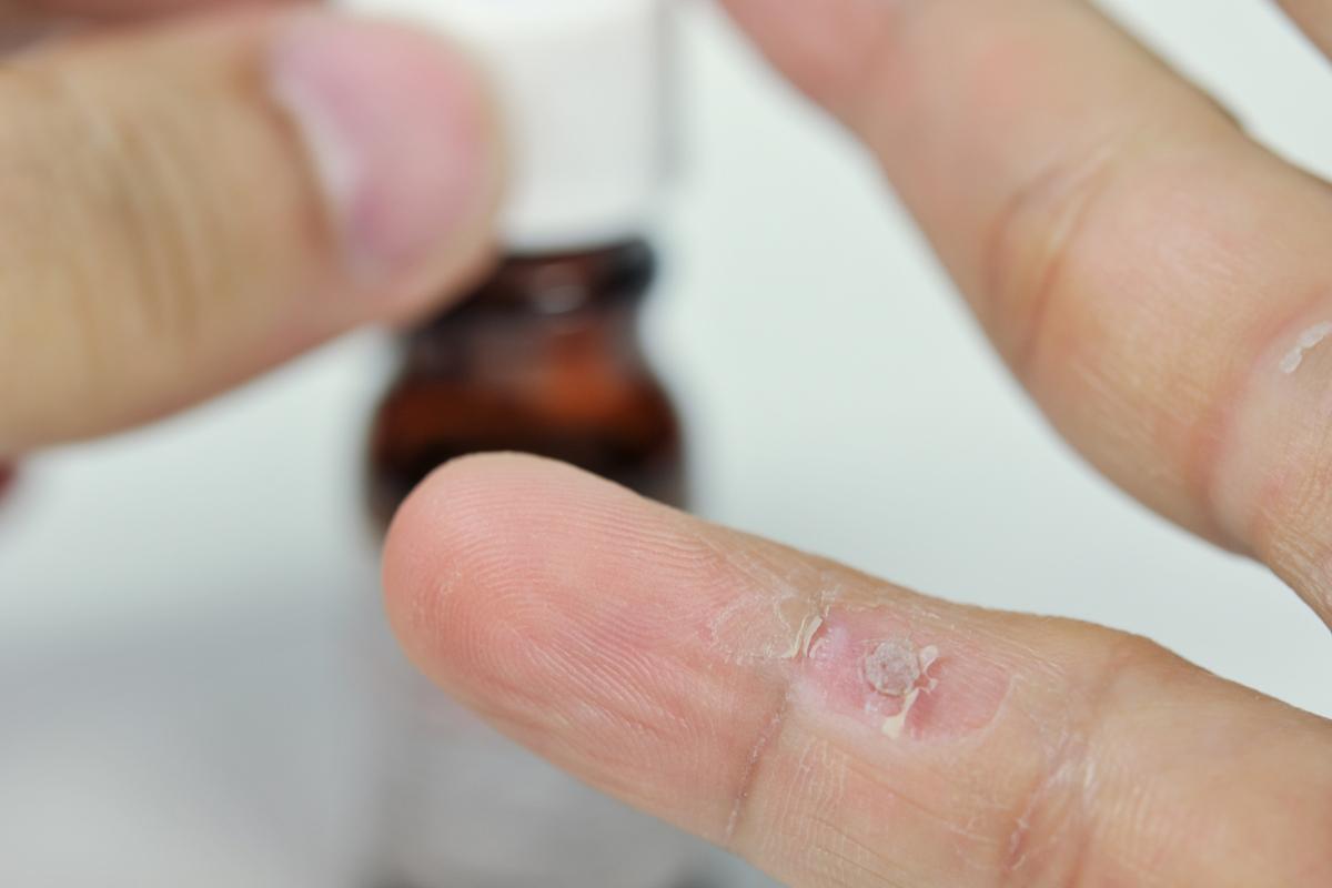 szemölcs kezelés hidrogén-peroxid)