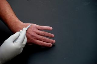 Biztonságos-e a papillómák eltávolítása?, Szemölcs kezelése | Med-Aesthetica
