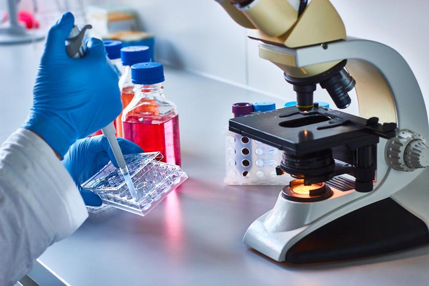 vastagbélrák laboratóriumok