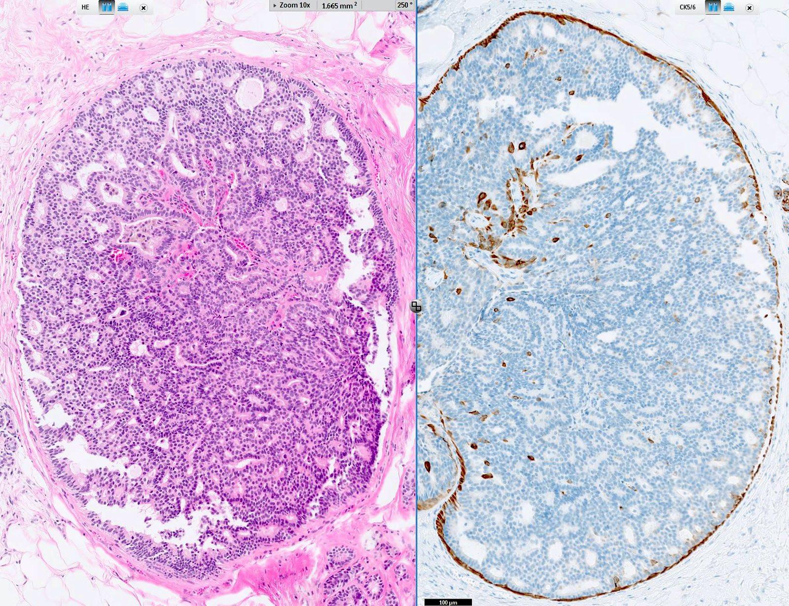 intraductalis papilloma hisztopathology)