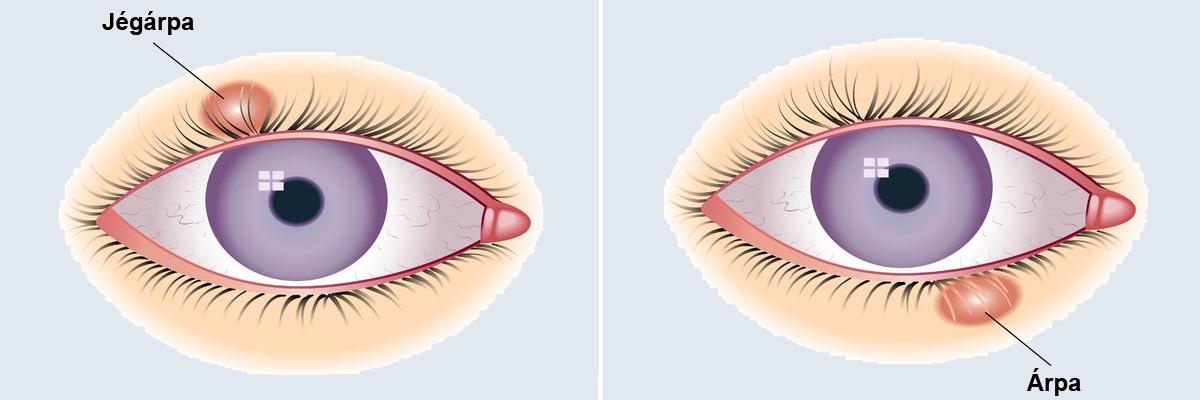a condyloma eltávolítása a szemhéjon