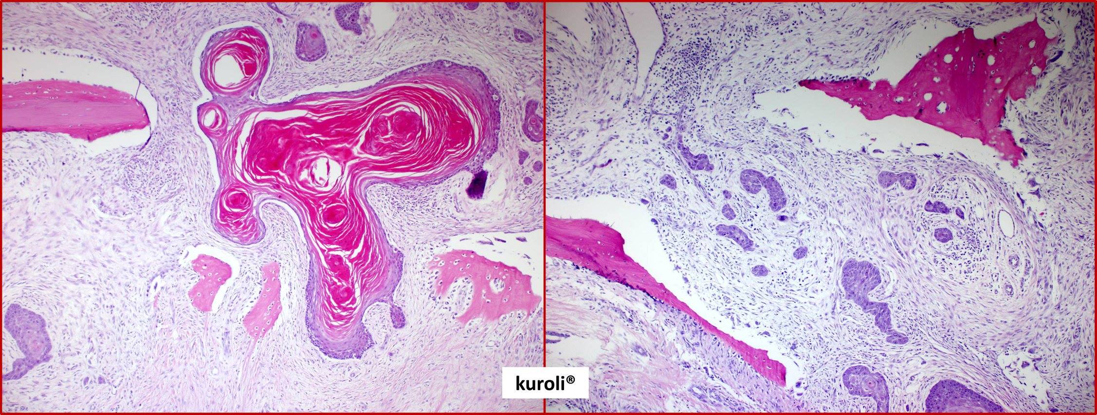 papillomatosis bőrpatológia