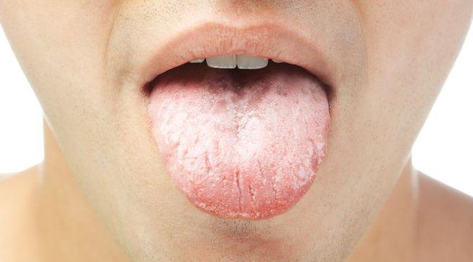 kondilomatikus leukoplakia papilloma kezelés krém