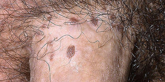 az agyba emelkedő toxin pinwormok születésükkor
