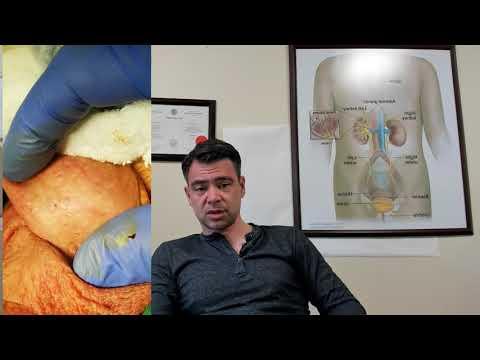 hpv propolisz tedavisi