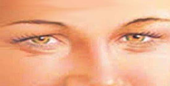 a szem alatti papillómák okozzák