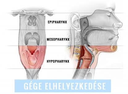 papilloma vs szemölcs kenőcsök a nemi szemölcsök ellen