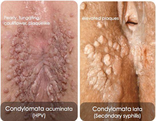 condyloma acuminata hpv