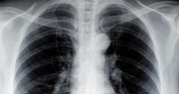 tüdőrák 20 éves korban)