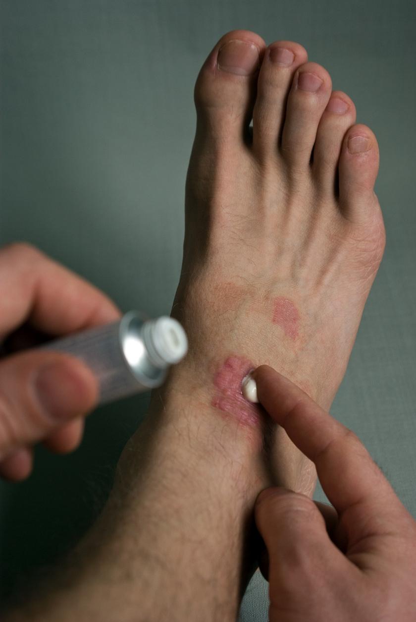 allergiás dermatitis az ujjak között)