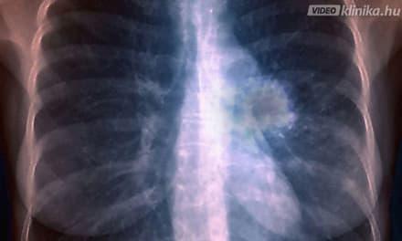 A tüdőrák nagyon alattomos betegség