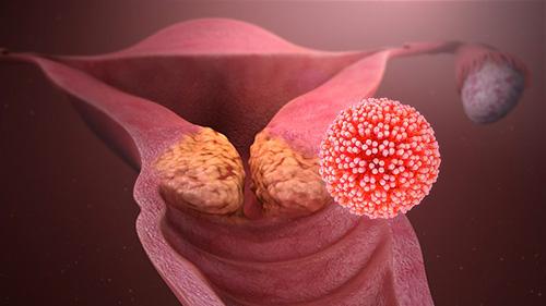 hpv vírus behandlung schwangerschaft