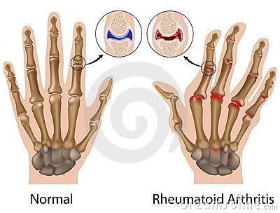 fájdalom a kéz ujjai között mi van)