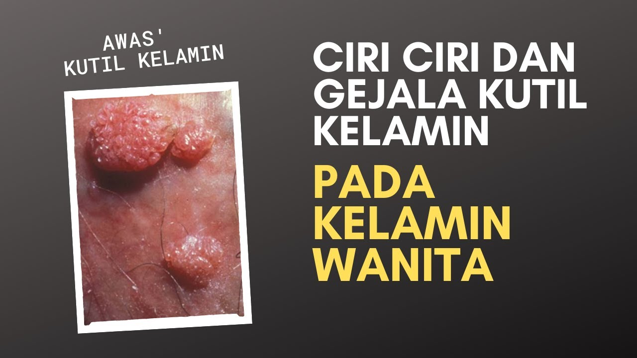 emberi papilloma vírus pada wanita