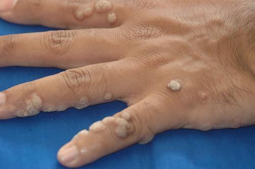 papillomavírusos bőrfertőzés hajdina méregtelenítésre