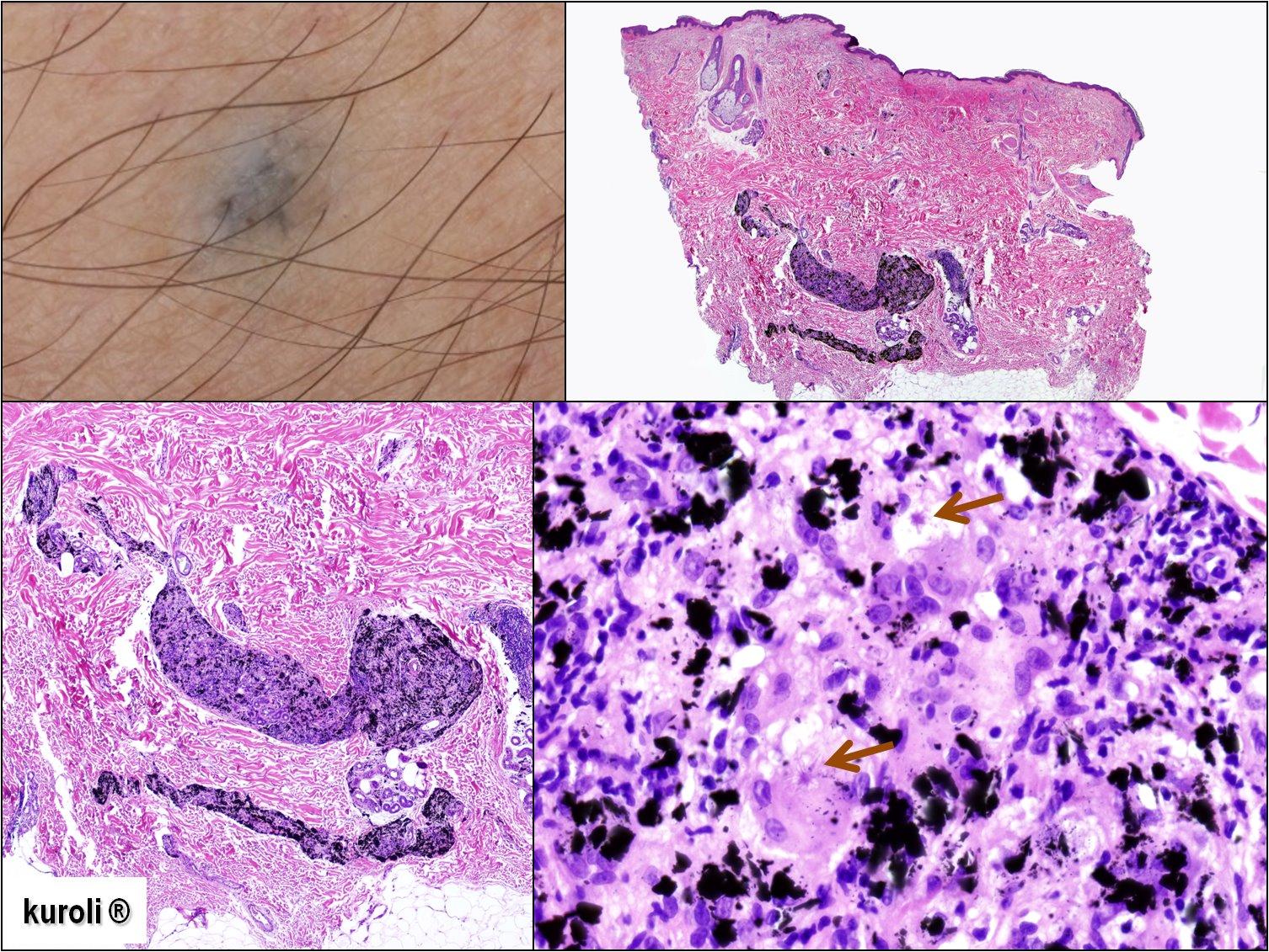 Bőrpatológia. II. Sz. Patológiai Intézet, Semmelweis Egyetem - PDF Ingyenes letöltés