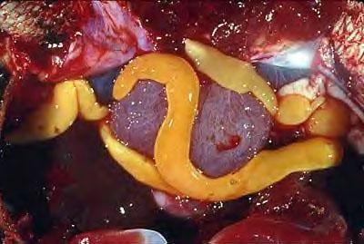 hpv sérülés és terhesség pszichoszomatikus pinworm