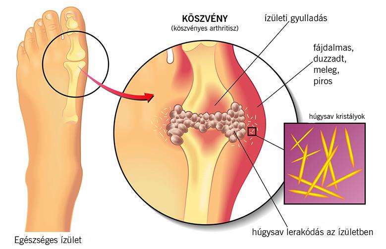az emberi helminthiasis tünetei)