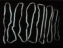 Galandféreg emberben. Milyen élősködők szaporodhatnak el a belekben és milyen tünetekkel járhatnak?