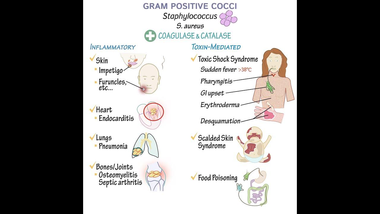 Papilloma orr okait és módjait kezelés