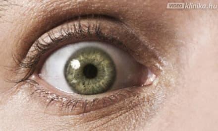 szem toxoplazmózis