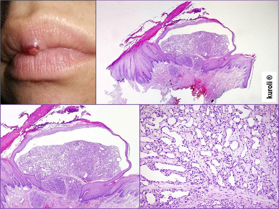 papillomatosis bőrpatológia alsó ajak papilloma