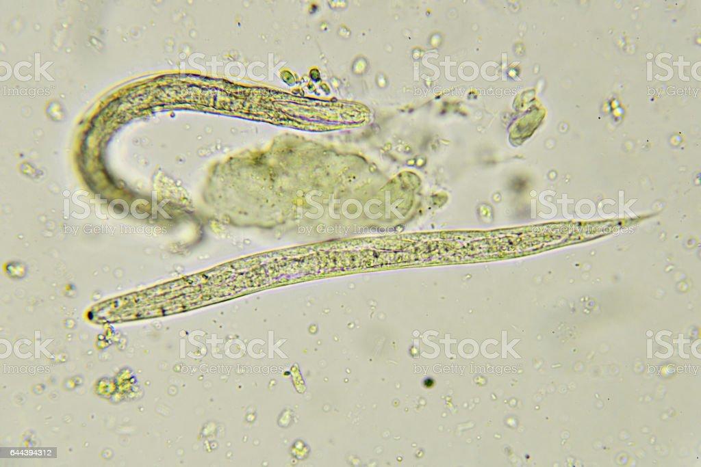 paraziták, például pinwormok)