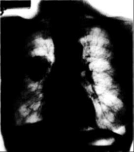 műtött tüdőrák