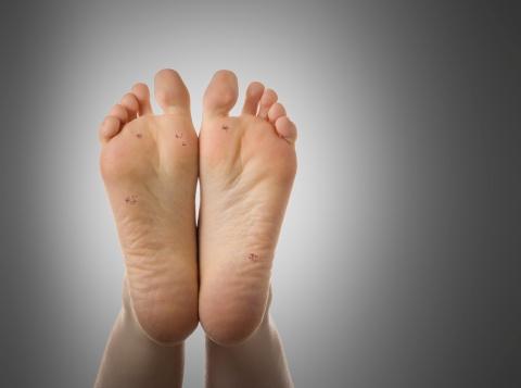 lábláb szemölcsök a lábujjak alatt
