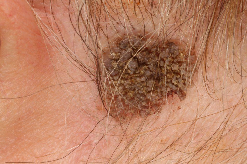 bőrgyógyászat növényi szemölcs