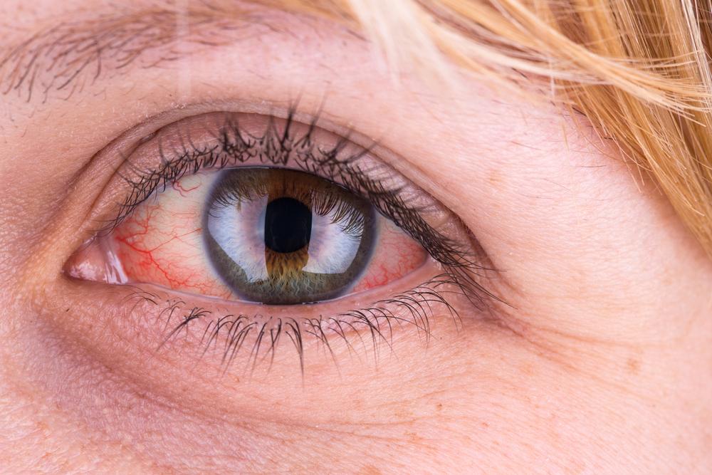 a szem papilloma vírusa