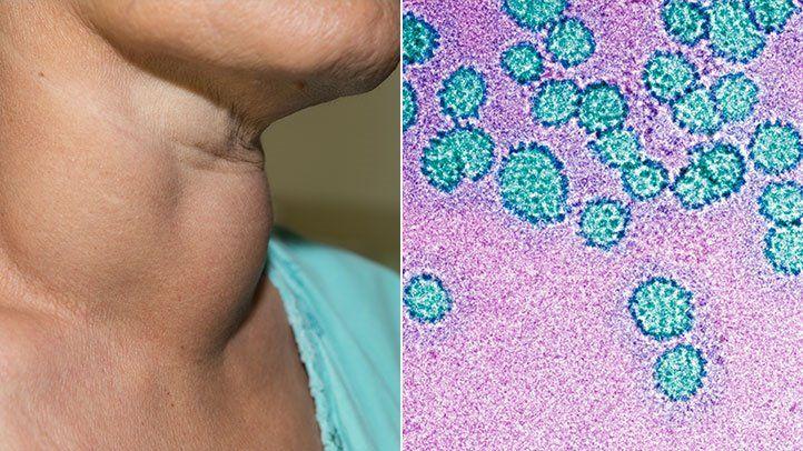 hpv vagy vírus hogyan csökkennek a papillómák a testen