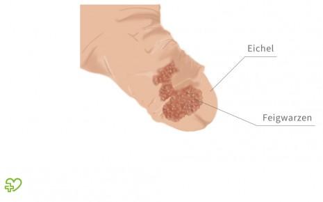 Hpv virus ferfiaknal kezelese, Rectal cancer where does it spread